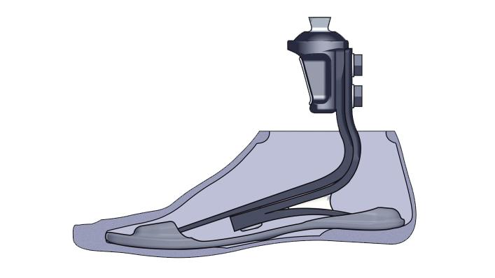triton_prosthetic